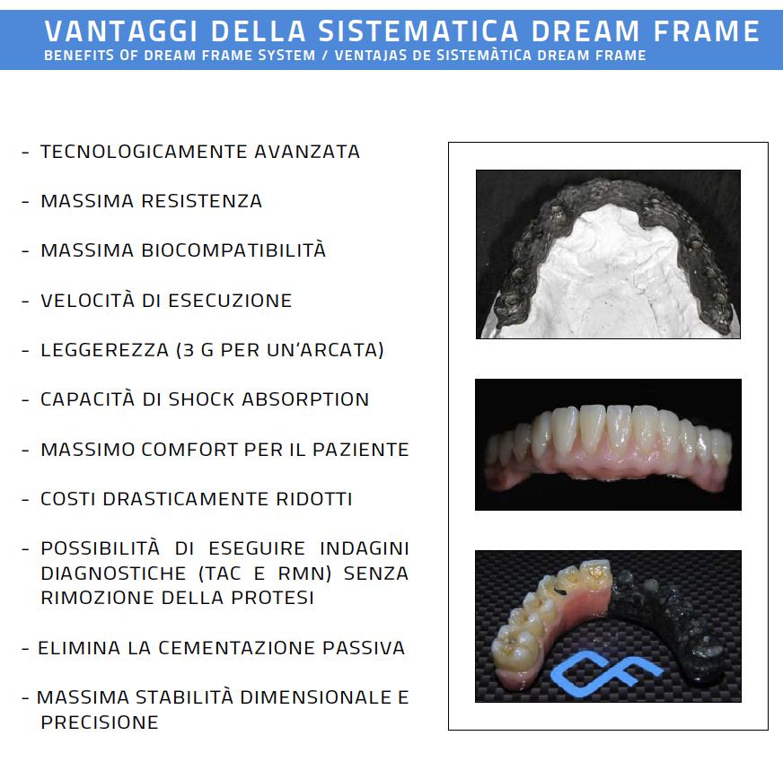 dream_frame_resina_0.png